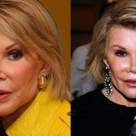 Joan Rivers' Face!