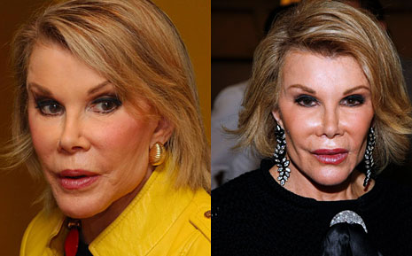 Joan Rivers face