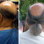Balding men with ponytails!